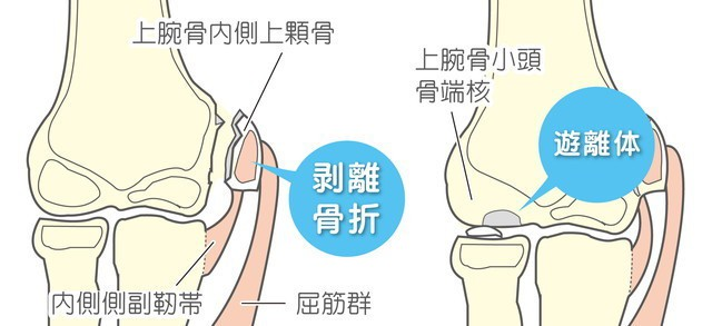 野球肘 関節ねずみ 上腕骨内側上顆骨 剥離骨折 内側側副靭帯 屈筋群 上腕骨小頭骨端核 遊離体