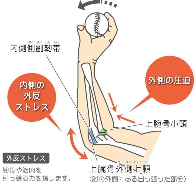 野球肘 内側側副靭帯 外反ストレス 上腕骨小頭 外側の圧迫 上腕骨外側上顆 靭帯や筋肉を引っ張る力  高槻スポーツ整体 ぎの整体院