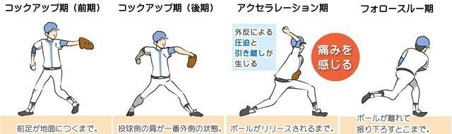 野球肩 投球動作 コックアップ期前期 コックアップ期後期 アクセラレーション期 フォロースルー期 外反による圧迫と引き離しが生じる 痛みを感じる 前足が地面に着くまで 投球側の肩が一番外側の状態 ボールがリリースされるまで ボールが離れて振り下ろすとこまで。