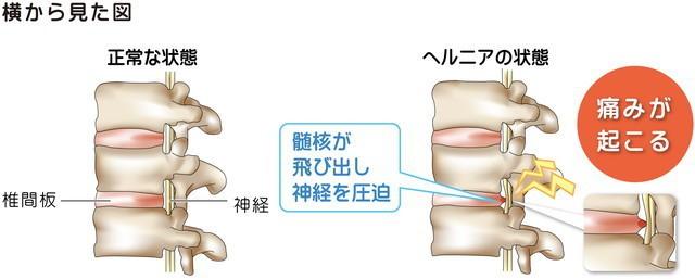 椎間板 腰椎 ヘルニア 髄核が飛び出し神経を圧迫 神経