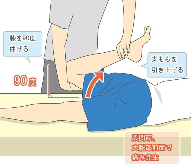 FNST(大腿神経伸展テスト)