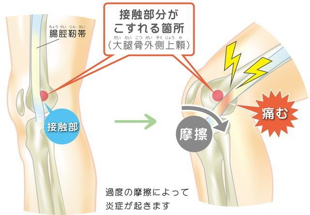 腸脛靭帯 接触部 こすれる箇所 大腿骨外側上顆 過度の摩擦によって炎症が起きます 摩擦 痛む
