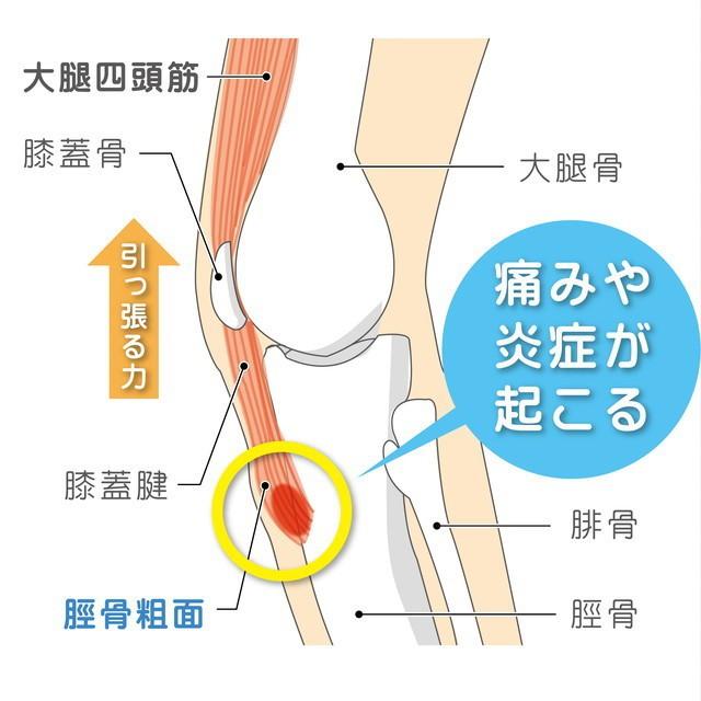 大腿四頭筋  膝蓋骨 膝蓋腱 脛骨粗面 大腿骨 腓骨 脛骨 牽引力 炎症 オスグッド・シュラッター病