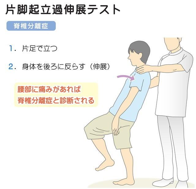 片脚起立過伸展テスト 脊椎分離症 腰椎分離症 腰部に痛みがあれば脊椎腰椎分離症と診断される 身体を後ろに反らす伸展