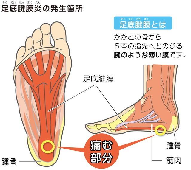 足底筋腱膜炎の発生箇所 足底筋腱膜とは 踵骨足底筋腱膜 踵骨 筋肉 かかとの骨から5本の指先へ伸びる腱のような薄い膜です