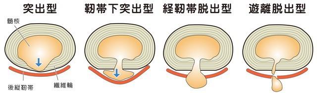 腰椎椎間板ヘルニア 突出型 靭帯下突出型 経靭帯脱出型 遊離脱出型 髄核 後縦靭帯 線維輪