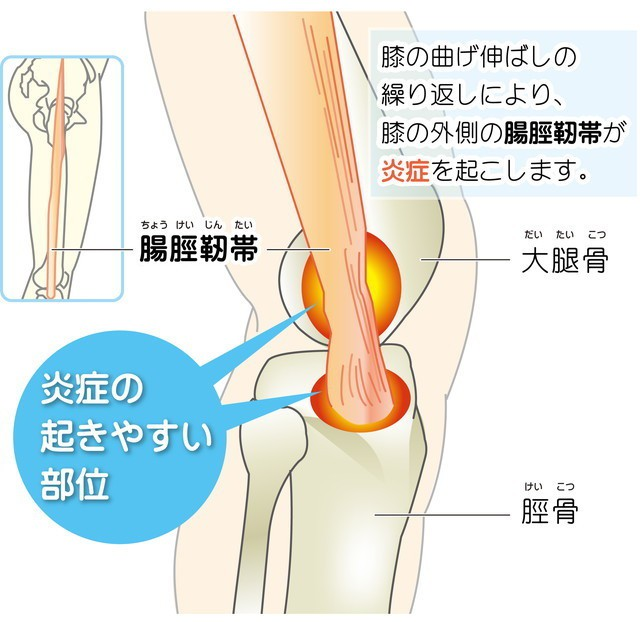 膝の曲げ伸ばしの繰り返しにより、膝外側の腸脛靭帯が炎症を起こします。 腸脛靭帯 大腿骨 脛骨 炎症の起きやすい部位