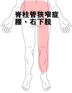 脊柱管狭窄症 腰 右下肢
