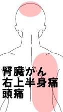 腎臓がん 右上半身痛 頭痛
