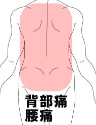 背部痛 腰痛