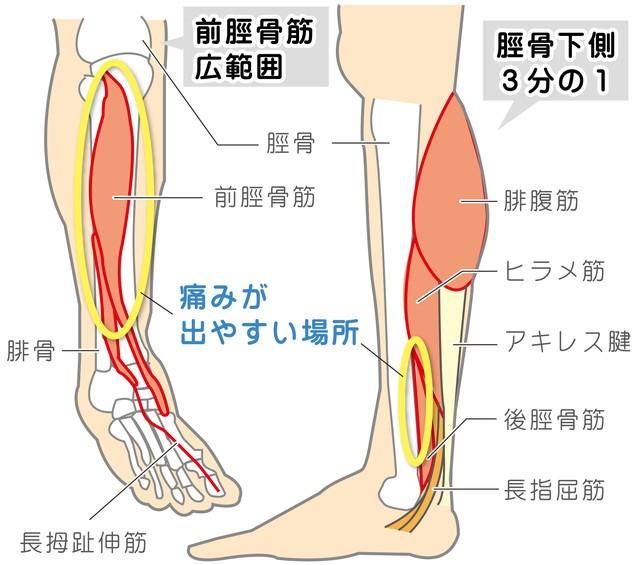 シンスプリント 疲労性骨膜炎 前脛骨筋広範囲 脛骨 前脛骨筋 腓骨 長母趾伸筋 脛骨下側3分の1 腓腹筋 ヒラメ筋 アキレス腱 後脛骨筋 長指屈筋