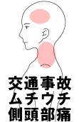 交通事故 ムチウチ 側頭部痛