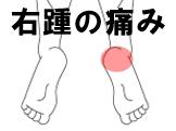 右踵の痛み シーバー病