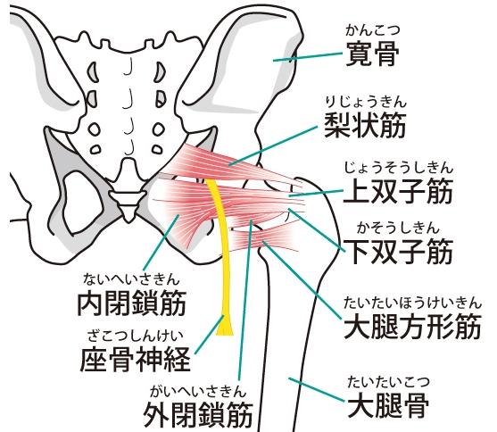 坐骨神経痛 梨状筋