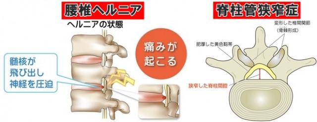 坐骨神経痛 腰椎ヘルニア 脊柱管狭窄症
