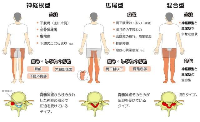 脊柱管狭窄症 神経根型 馬尾型 混合型