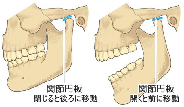 顎関節症 関節円板