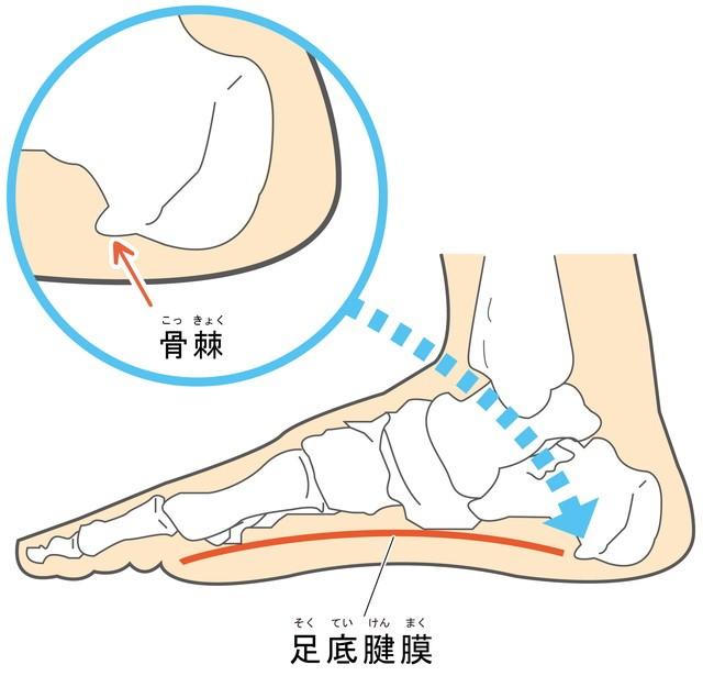 足底筋膜 骨棘