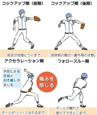 投球動作 コックアップ期前期 コックアップ期後期 アクセラレーション期 フォロースルー期 外反による圧迫と引き離しが生じる 痛みを感じる 前足が地面に着くまで 投球側の肩が一番外側の状態 ボールがリリースされるまで ボールが離れて振り下ろすとこまで