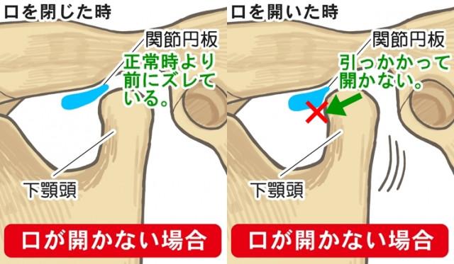 関節円板 下顎頭 下顎頭 関節円板 口が開かない場合