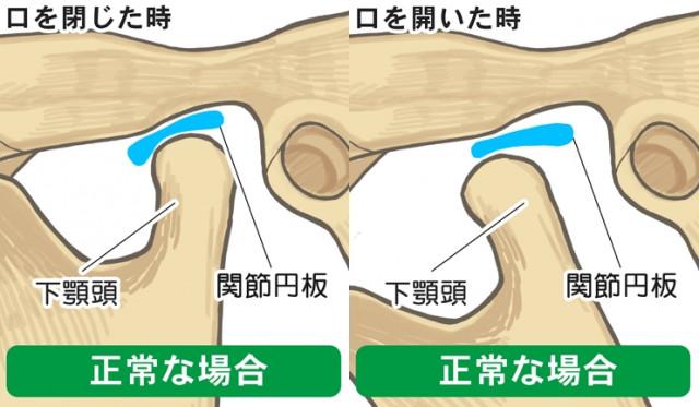 顎関節 関節円板 下顎頭