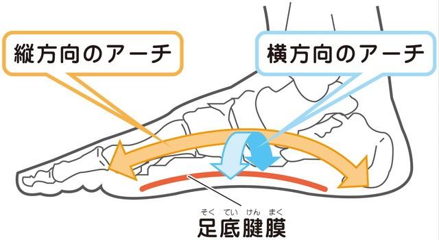 足底筋膜炎 アーチ
