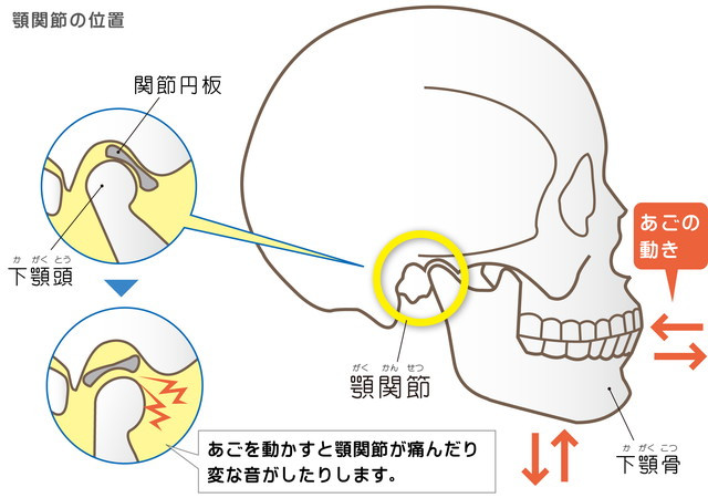 顎関節症 関節円板 下顎骨