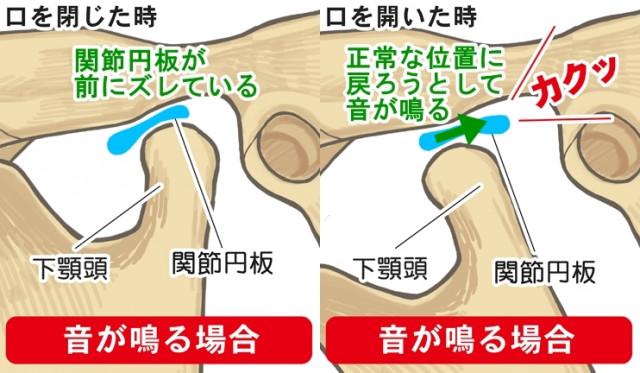 関節円板 下顎頭 音が鳴る 下顎頭 関節円板 音が鳴る