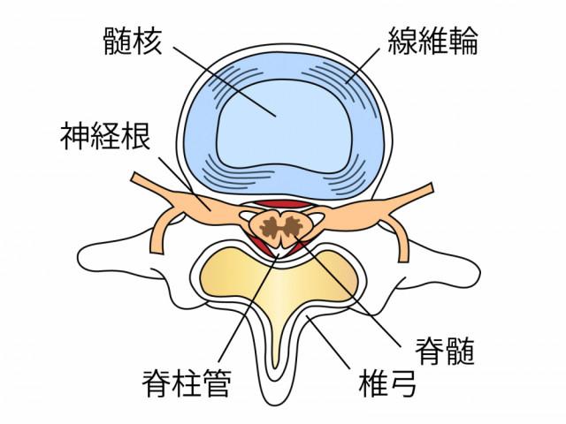 椎間板 髄核 線維輪