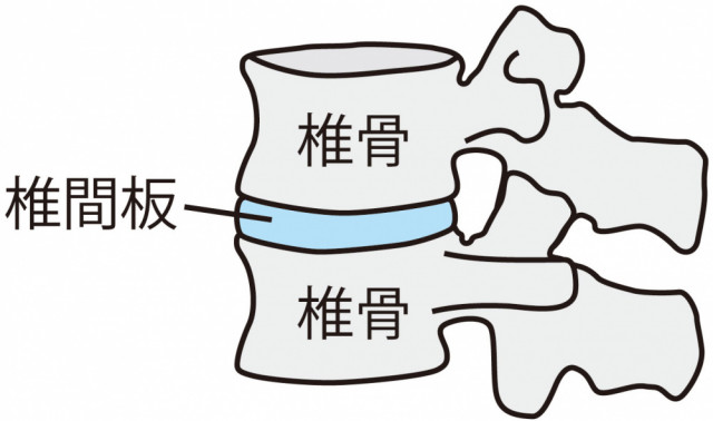 椎間板 椎骨