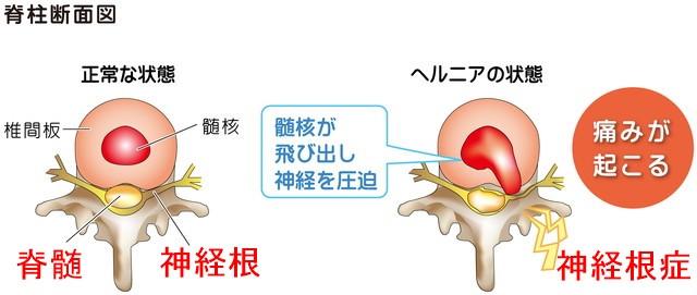 ヘルニア 頚椎症性脊髄症 頚椎症性神経根症