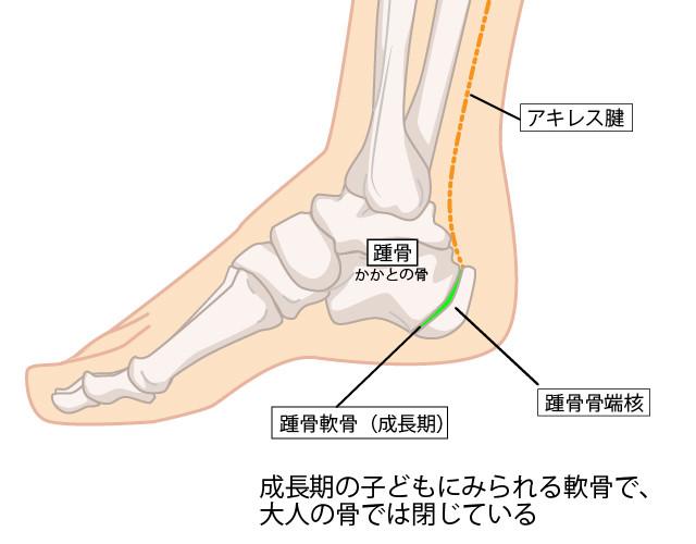 成長期踵骨軟骨 成長期の子供 踵骨骨端核
