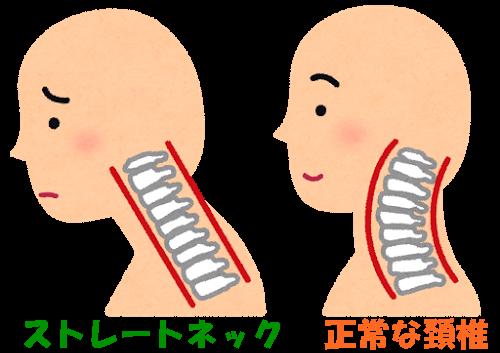 ストレートネック 正常な頚椎
