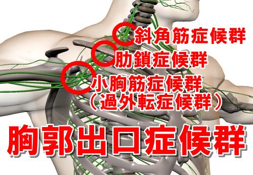 胸郭出口症候群 斜角筋症候群 肋鎖症候群 小胸筋症候群