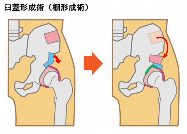 臼蓋形成不全 手術
